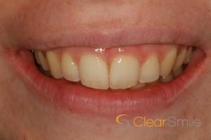 Dental Braces Edinburgh: A perfectly shaped mouth following teeth straightening with dental braces from Barron Dental, Leith, Edinburgh