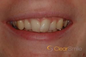 Teeth Straightening Edinburgh: Overlapping teeth, prior to teeth straightening with dental braces from Edinburgh dental practice, Barron Dental, Leith.