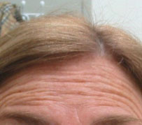 Botox Wrinkle Treatment Edinburgh: A wrinkle creased forehead prior to Botox Wrinkle Treatment as part of a facial rejuvenation procedure by Barron Dental, Leith, Edinburgh.