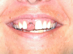 Tooth Implants Edinburgh: A mouth with a missing tooth pre dental implants from Barron Dental, Leith, Edinburgh.