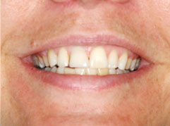 Dental Implants Edinburgh: A successful tooth implant following dental a dental implant procedure from Barron Dental, Leith, Edinburgh.