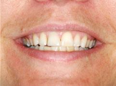 Dental Implants Edinburgh: A successful tooth implant following a dental implant procedure from Barron Dental, Leith, Edinburgh.