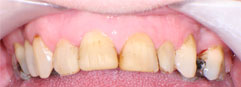 Stained, discoloured and misshapen teeth prior to porcelain dental veneers being fitted by Edinburgh dentist, Barron Dental, Leith. Dental Veneers Edinburgh.