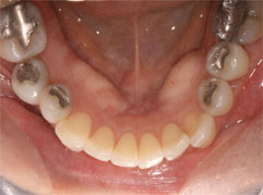An unattractive mouth with amalgam fillings. Barron Dental provides white fillings in Edinburgh.