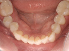 A healthy mouth complete with new, white fillings. Barron Dental, white fillings Edinburgh.