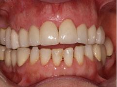Dental Crowns Edinburgh: A bright and even set of teeth following dental crown treatment in Edinburgh by Barron Dental, Leith.