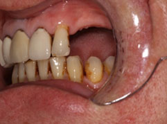 A mouth with a three tooth gap prior to denture implants from Barron Dental, Leith, Edinburgh.