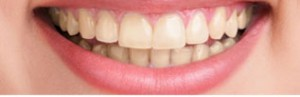 Teeth Whitening Edinburgh: Teeth before teeth whitening at Barron Dental, Leith.