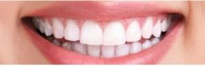 A bright smile showing the results of successful teeth whitening, at Barron Dental, Leith, Edinburgh. Teeth whitening Edinburgh