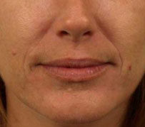 A before photograph of someone prior to Juvederm fillers, wrinkle treatment by Barron Dental, Edinburgh. This was carried out as part of a facial rejuvenation treatment by our dental care specialists.