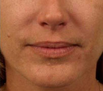 A photograph of a smoother mouth following Botox treatment between a patient's nose and corner of their lips. This wrinkle treatment was carried out as part of a facial rejuvenation procedure by Barron Dental practice, Leith, Edinburgh.