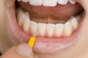 id brush front teeth