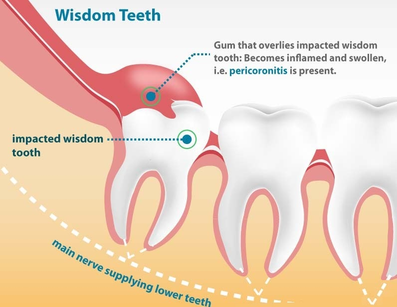 What Is An Impacted Tooth