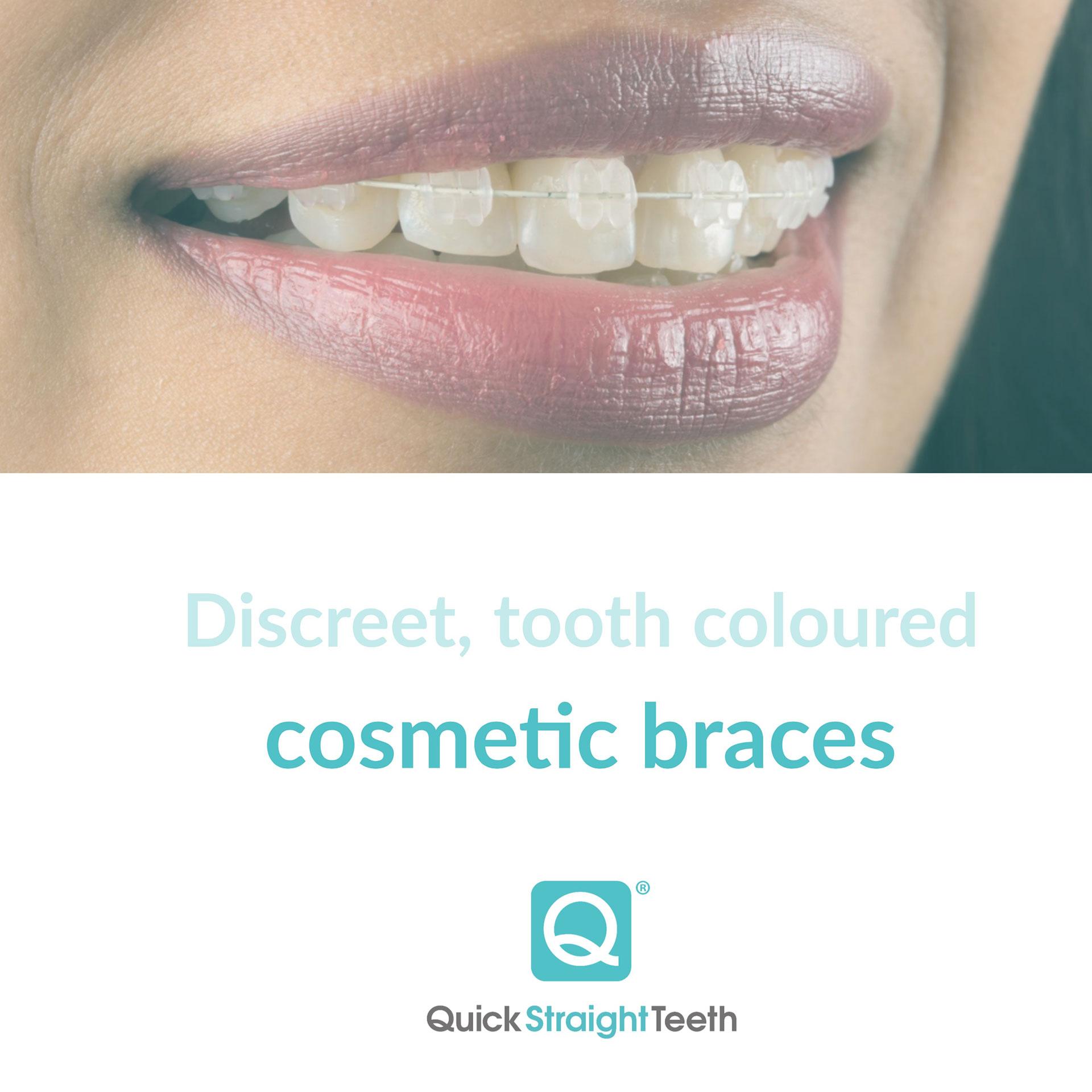 Cfast Braces | Short term Braces | Teeth Straightening ...